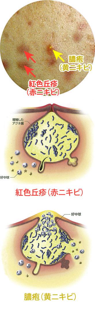 症状:紅色丘疹(赤ニキビ)、膿疱(黄ニキビ)