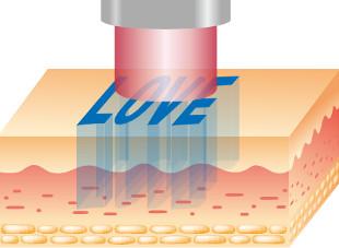 治療の流れ1:ルビーレーザーを照射します。