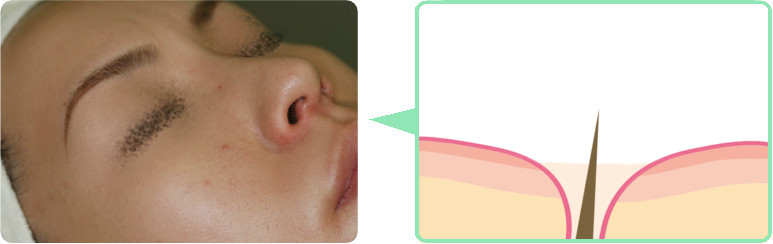 治療の流れ1:麻酔のクリームを塗ります