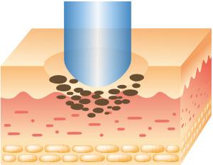 治療の流れ2:炭酸ガスレーザーで削り取ります